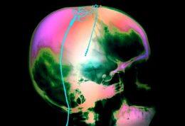 در بیماران مبتلا به سکته مغزی وضعیت بدن چگونه است