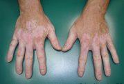 سفیدی کل بدن، آخرین درمان برای برص