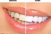 تفاوت بین روش های شفاف کردن دندان و جرم گیری آن