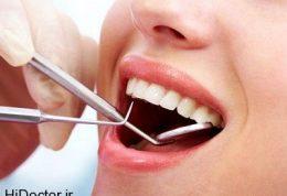 مخاطرات فست فود برای دندانها