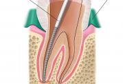 اطلاعاتی راجع به عصب کشی دندان