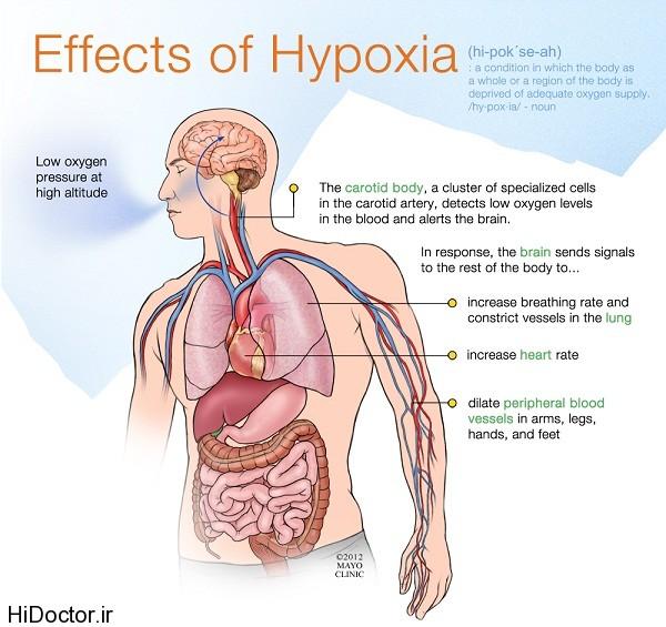 تعریف هایپراکسی و هیپوکسی