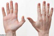 ارتباط ژنتیک با چپ دستی