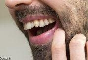 مردی با غیرعادی ترین دندان ها