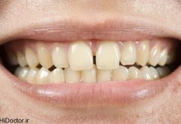 اگر از فاصله بین دندان هایتان خسته شده اید