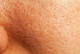 چرا منافذ پوست بزرگتر می شود و درمانهای طبیعی آن