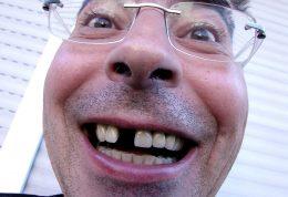 دندان شما آینه حافظه شماست