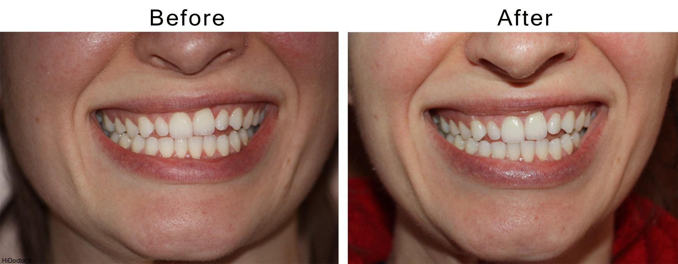 سفید کننده دندان با جوش شیرین