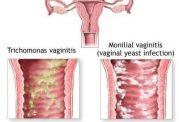 از دلایل و علت خشکی و خارش واژن تا درمان