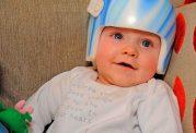 سندرم سر صاف در اطفال