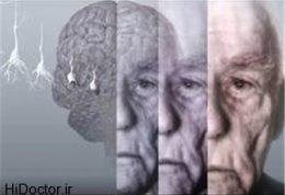 اسپری مخصوص پیشگیری از زوال عقل در سالمندان