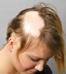 ریزش مو از ریشه