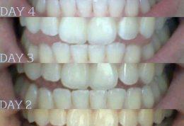 تاثیرات مفید نارگیل برای دندان