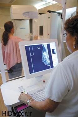 در چه مواردی ماموگرافی توصیه می شود ؟