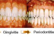 دندان تاجی از زیبایی