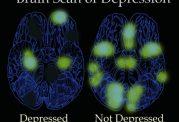 با این ده نشانه شما افسرده شده اید