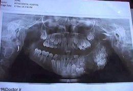 رویش دندان های اضافی درون دهان این پسر