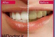 رسیدگی به دندان ها با روش های طبیعی
