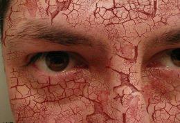 درباره پوستهای خشک این موارد کمک کننده هستند