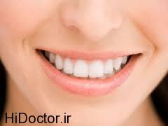 از پوسیدگی دندانتان پیشگیری کنید
