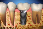 عوامل خطرساز برای دهان و دندان