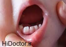 بررسی ناهنجاری از لحاظ دندانی
