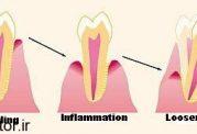 نجات و بازگرداندن دندان لق شده