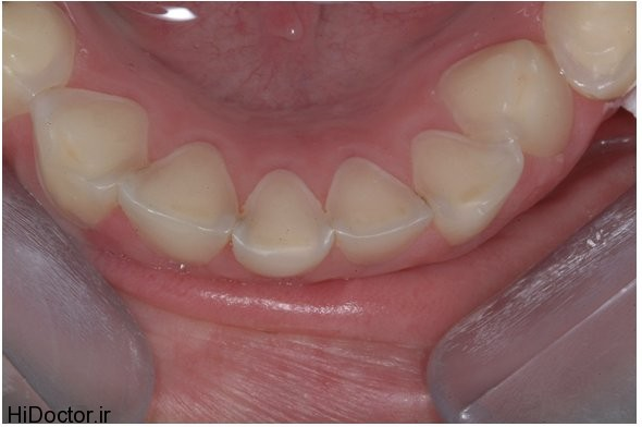 فرسودگی و ساییدگی مینای دندان