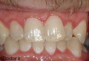 بیشترین سفیدی دندان با کمترین امکانات