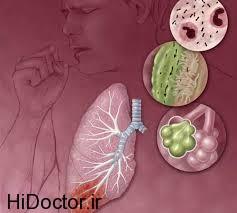 آلودگی در هوا و افراد مبتلا به سینوزیت حاد