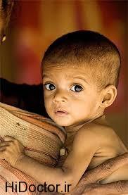 علت ابتلا به سوء تغذیه در اطفال