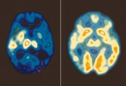 با سرد شدن مغز افسرده می شوید