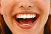 نشانه های سلامت در خنده