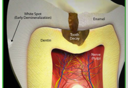 بیماری های جسمی ناشی از بیماری های دندانی