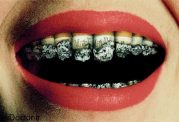 دشمنی سیگار با دهان و دندان