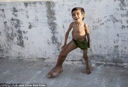 کودک هندی و این بیماری نادر