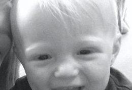 بیماری نادر ژنتیکی و مرگبار در این کودک