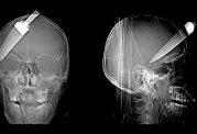 عکس هایی جالب و هراس آور رادیولوژی
