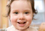 علائم نگران کننده برای صدمه به جمجمه نوزاد