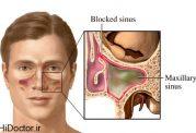 بررسی انواع عفونت سینوس قارچی و درمان هرکدام