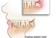 اطلاعاتی در مورد دندان های نهفته
