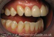 دندان پس از جرم گیری چگونه است؟
