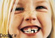 آمار بالای مشکلات مربوط به دهان و دندان اطفال