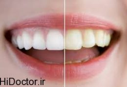 کهولت سن علت بدرنگی دندان