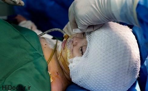 عکس هایی از عمل بازسازی جمجمه در کودکان