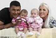 نوزادان دوقلو با متفاوت ترین رنگ پوست