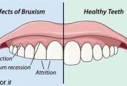 دندان قروچه و آسیب های آن
