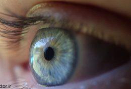 مداوای  همیشگی سیاهی دور چشم چیست؟