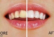 ماندگار کردن شفافیت دندان