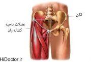 آسیب شناسی - کشیدگی عضلانی کشاله ران